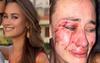 Ünlü model İzmir'de saldırıya uğradı