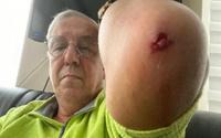 Uğuroğlu'na saldıranlardan biri gazeteciden şikayetçi oldu