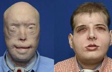 Amerikalı itfaiyecinin yüzü baştan yaratıldı