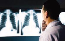 Tıp Fakültesinde kanser paniği