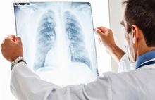 Akciğer kanserinde büyük umut