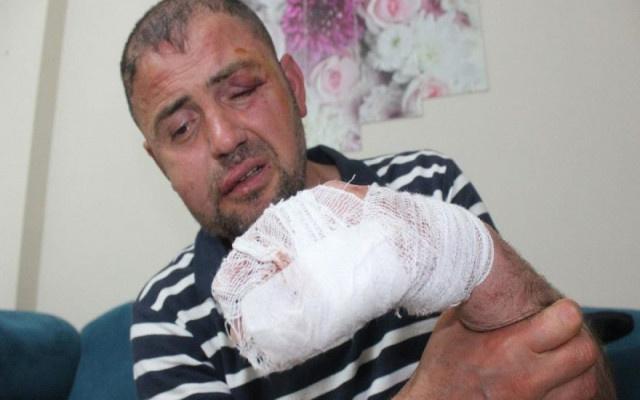 Gazi'ye kafe sahipleri tarafından öldüresiye dayak