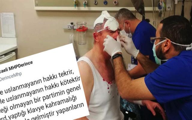 MHP'den saldırıya şok yorum: Yapanların eline sağlık